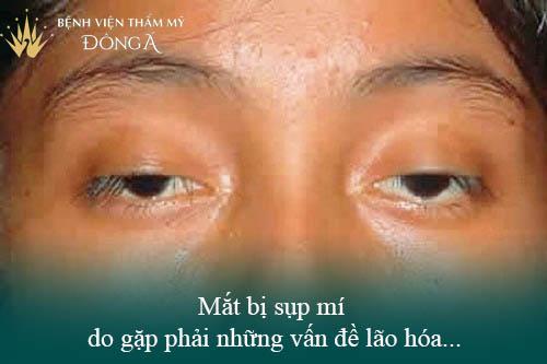3 Cách nâng mí mắt không cần phẫu thuật Đơn Giản/Hiệu Quả tại nhà 4