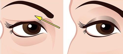 Phẫu thuật nâng mí mắt bị sụp cho mắt To Đẹp - Tươi Trẻ 2