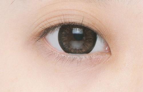 Ngủ dậy mắt thành 3 mí - Nguyên nhân và cách khắc phục HIỆU QUẢ 1