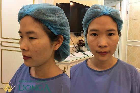 Vân Anh đã quyết định đến Bệnh viện Thẩm mỹ Đông Á để cắt mí