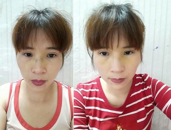 Hình ảnh chị Vân Anh sau khi thực hiện cắt mí Eye Lift được 2 tuần