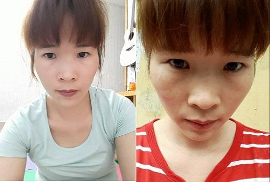 Đôi mắt của Vân Anh đã bị chùng xuống khiến cô ấy trông già hơn so với tuổi thực