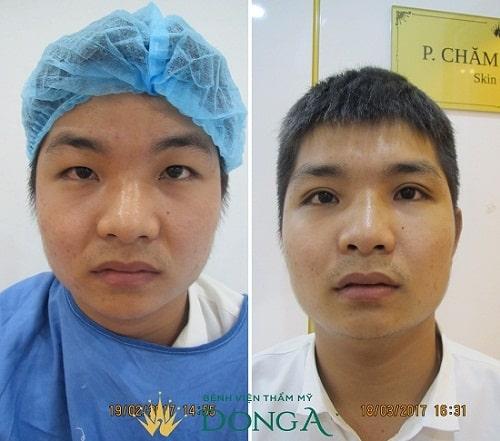Top 10 ca nhấn mí đẹp thành công tại Bệnh viện Thẩm mỹ Đông Á