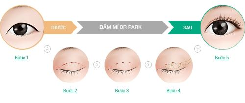 Bấm mí mắt có hại không? Cần cân nhắc gì trước khi bấm mí mắt? 2