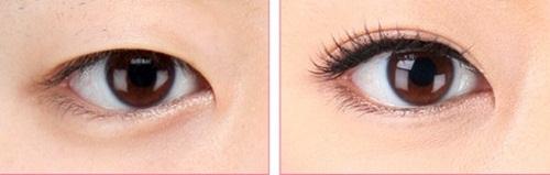 Nhấn mí tự nhiên - An toàn - Không dao kéo cho đôi mắt To Tròn Đẹp 1
