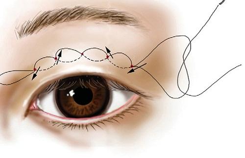 Nhấn mí vi điểm là gì? Giải pháp an toàn cho mắt 2 mí chuẩn đẹp dài lâu 1