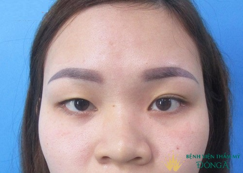 Nhấn mí vi điểm là gì? Giải pháp an toàn cho mắt 2 mí chuẩn đẹp dài lâu 2