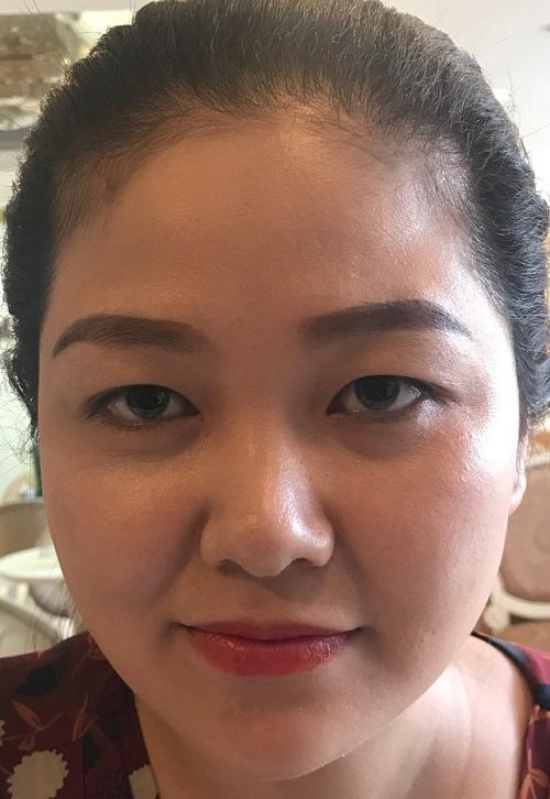 Nhật ký cắt mí mắt sau 7 ngày đẹp Hoàn Hảo của chị Hồng Nhiên 2