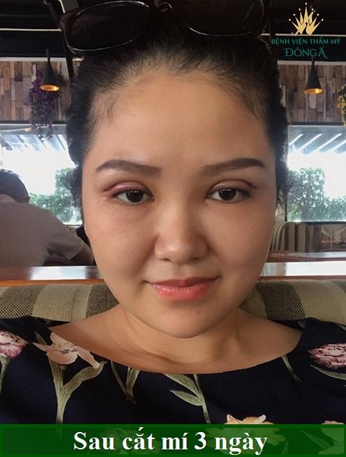 Nhật ký cắt mí mắt sau 7 ngày đẹp Hoàn Hảo của chị Hồng Nhiên 5