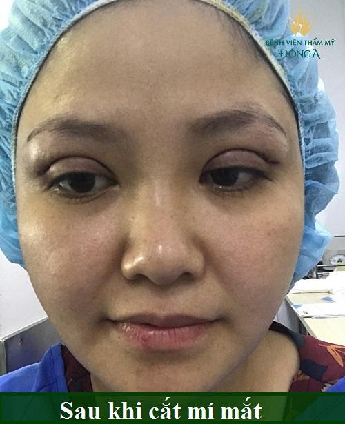 Nhật ký cắt mí mắt sau 7 ngày đẹp Hoàn Hảo của chị Hồng Nhiên 4