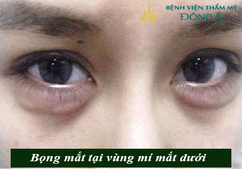 Bọng mắt quầng thâm là gì? Cách trị bọng mắt và quầng thâm hiệu quả 1
