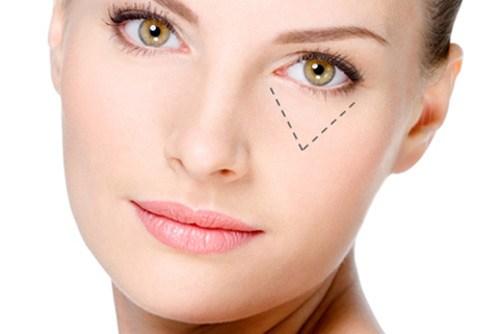Phẫu thuật cắt bọng mắt dưới giá bao nhiêu tiền? Update bảng giá 2019 4