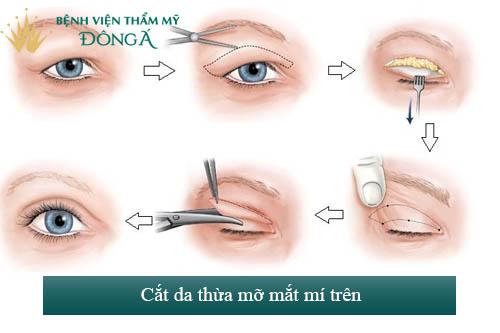 Phẫu thuật cắt da dư mỡ thừa mí trên - Giải pháp hoàn hảo cho U40 1