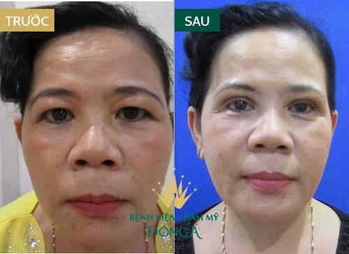 Phẫu thuật cắt da dư mỡ thừa mí trên - Giải pháp hoàn hảo cho U40 5