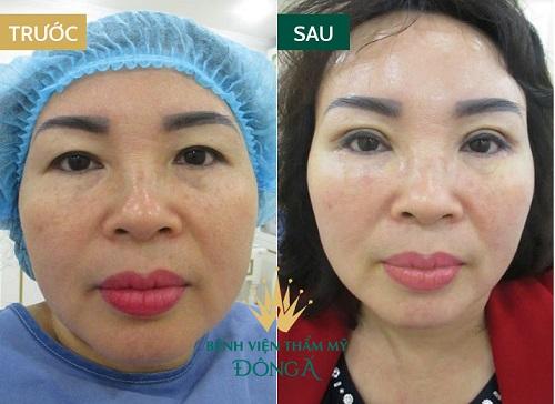 Phẫu thuật cắt da dư mỡ thừa mí trên - Giải pháp hoàn hảo cho U40 6