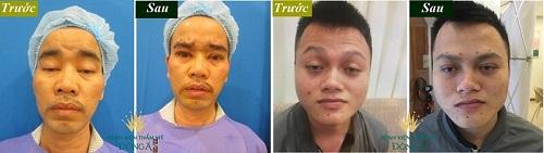 Phẫu thuật sụp mí mắt giá bao nhiêu tiền theo từng mức độ nặng nhẹ? 4