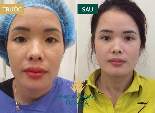 Phẫu thuật mắt hai mí - An toàn - Mắt to đẹp - Tươi trẻ 4