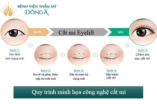 Phẫu thuật mắt hai mí - An toàn - Mắt to đẹp - Tươi trẻ 10