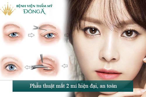 Phẫu thuật mắt hai mí - An toàn - Mắt to đẹp - Tươi trẻ 8