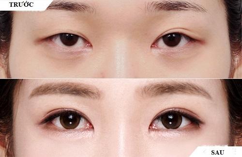 Phẫu thuật thẩm mỹ mắt to tròn - Khắc phục mọi khuyết điểm của mắt 1