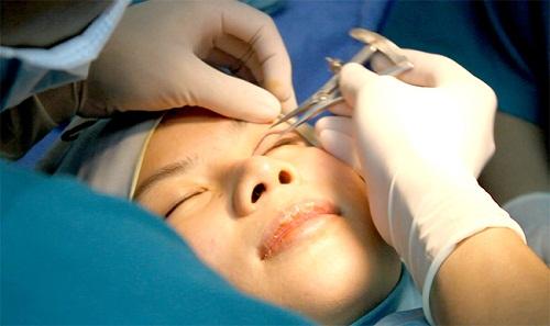Phẫu thuật mí mắt - 45p biến hóa cho mắt to đẹp HOÀN HẢO 2