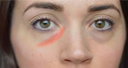 Phẫu thuật thẩm mỹ mắt lồi - Đối tượng, quy trình & lưu ý sau thực hiện 1