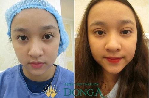 Phẫu thuật thẩm mỹ mắt lồi - Đối tượng, quy trình & lưu ý sau thực hiện 5