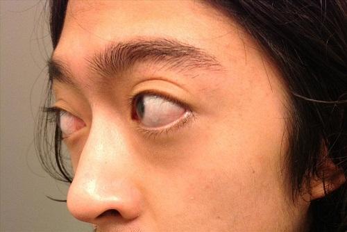 Phẫu thuật thẩm mỹ mắt lồi - Đối tượng, quy trình & lưu ý sau thực hiện 2