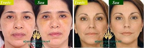 Phụ nữ có đôi mắt sâu là như thế nào, đẹp hay xấu, nói lên điều gì về họ? 6