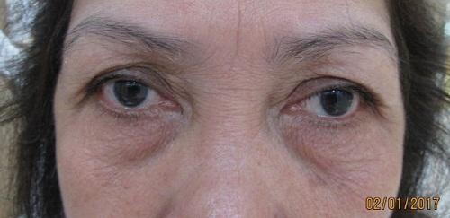 Phụ nữ có đôi mắt sâu là như thế nào, đẹp hay xấu, nói lên điều gì về họ? 4