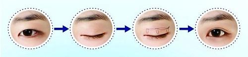 Phụ nữ mắt to mắt nhỏ là gì? Nguyên nhân & 2 cách khắc phục hiệu quả 5