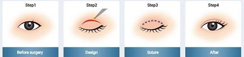 Phụ nữ mắt to mắt nhỏ là gì? Nguyên nhân & 2 cách khắc phục hiệu quả 7