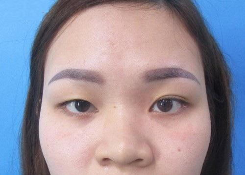 Phụ nữ mắt to mắt nhỏ là gì? Nguyên nhân & 2 cách khắc phục hiệu quả 3