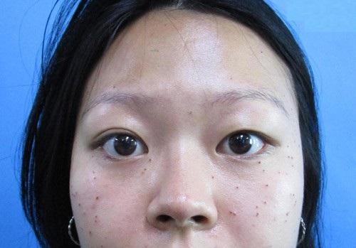 Phụ nữ mắt to mắt nhỏ là gì? Nguyên nhân & 2 cách khắc phục hiệu quả 4