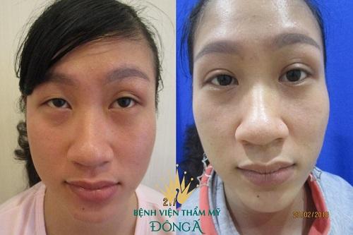 Phụ nữ mắt to mắt nhỏ là gì? Nguyên nhân & 2 cách khắc phục hiệu quả 8