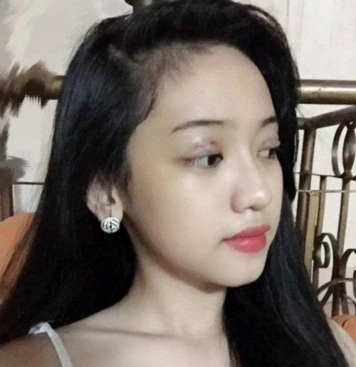 Những sao Việt cắt mí mắt gây chao đảo cộng đồng mạng nhất hiện nay