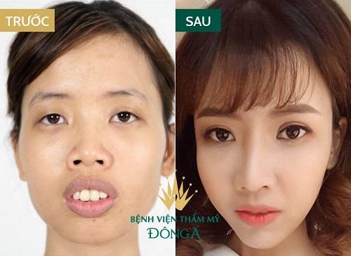 Sửa mí mắt phẫu thuật hỏng An Toàn - Hiệu Quả để mắt đẹp trở lại 5