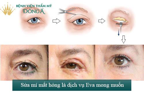 Sửa mí mắt phẫu thuật hỏng An Toàn - Hiệu Quả để mắt đẹp trở lại 1