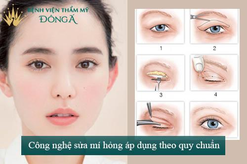 Sửa mí mắt phẫu thuật hỏng An Toàn - Hiệu Quả để mắt đẹp trở lại 2