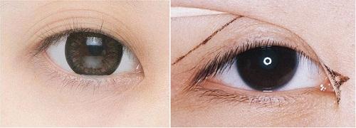 Chỉnh sửa mí mắt - Giải pháp An Toàn tái sinh đôi mắt đẹp HOÀN HẢO 1