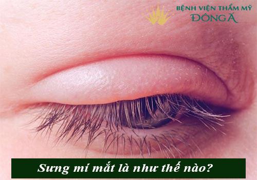 Nguyên nhân gây sưng mí mắt & Cách chữa an toàn, hiệu quả 1