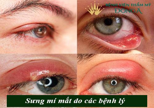 Nguyên nhân gây sưng mí mắt & Cách chữa an toàn, hiệu quả 2