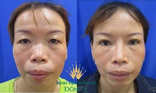 Nguyên nhân gây sưng mí mắt & Cách chữa an toàn, hiệu quả 6