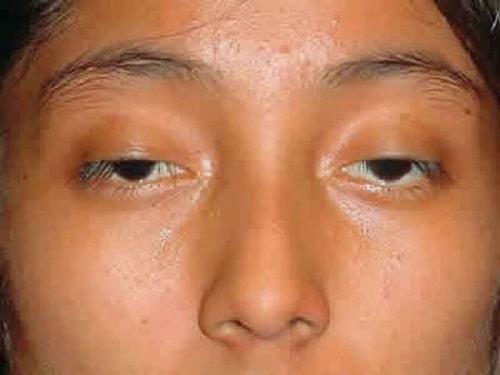 Chỉnh hình sụp mí mắt bẩm sinh An Toàn - Hiệu Quả cho mắt Tươi Trẻ 1