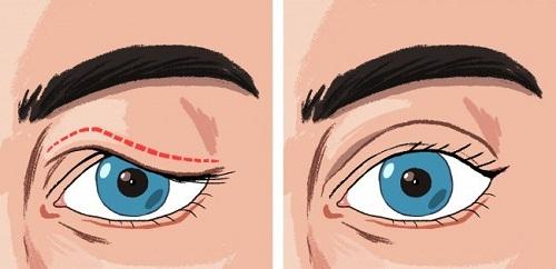 Chỉnh hình sụp mí mắt bẩm sinh An Toàn - Hiệu Quả cho mắt Tươi Trẻ 2