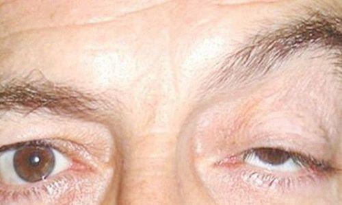 Sụp mí mắt có nguy hiểm không? Chuyên gia thẩm mỹ giải đáp 1