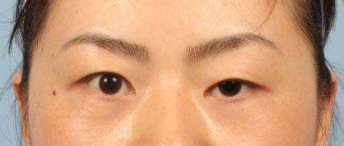 Sụp mí mắt có nguy hiểm không? Chuyên gia thẩm mỹ giải đáp 3