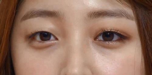 Sụp mí mắt ở người lớn - 5 nguyên nhân & cách khắc phục hiệu quả 5