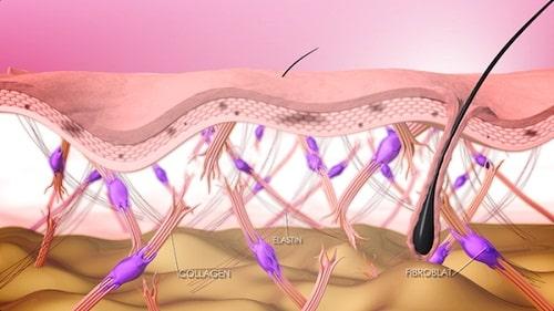 Sụp mí mắt ở người lớn - 5 nguyên nhân & cách khắc phục hiệu quả 2