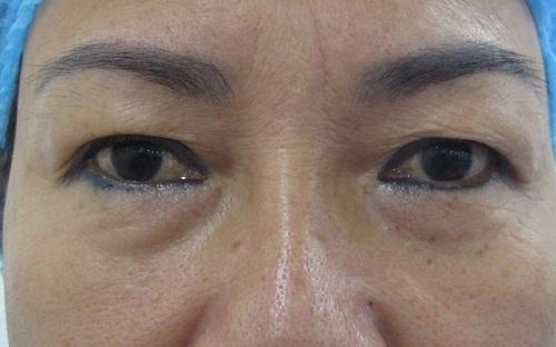 Sụp mí mắt ở người lớn - 5 nguyên nhân & cách khắc phục hiệu quả 6